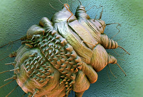 getty_rm_photo_of_sem_scabies_parasite.jpg